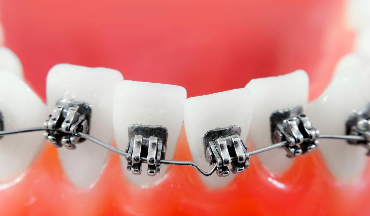 Как брекеты выравнивают зубы
