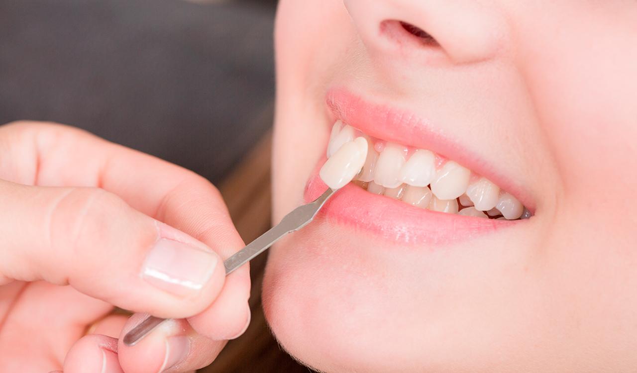Можно ли поставить виниры без обточки зубов?